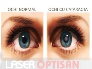 Ochi sanatos si ochi afectat de cataracta