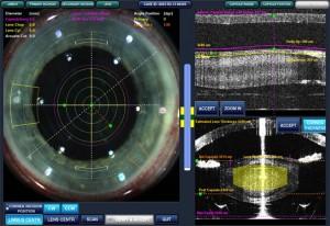 Imagine de pe monitorul laserului LenSx