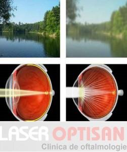 Simptomele cataractei