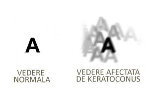 Simptome ale Keratoconusului